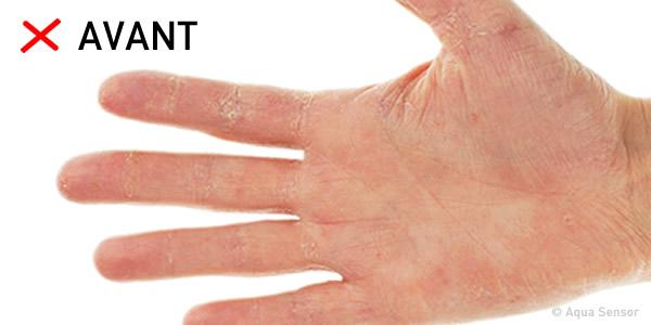 mains dures